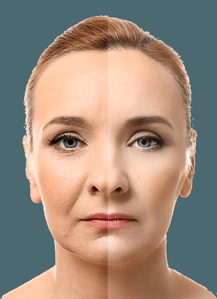 Yüzünün yarısı botoks ile kırışık tedavisi yapılmış orta yaştaki bir kadın