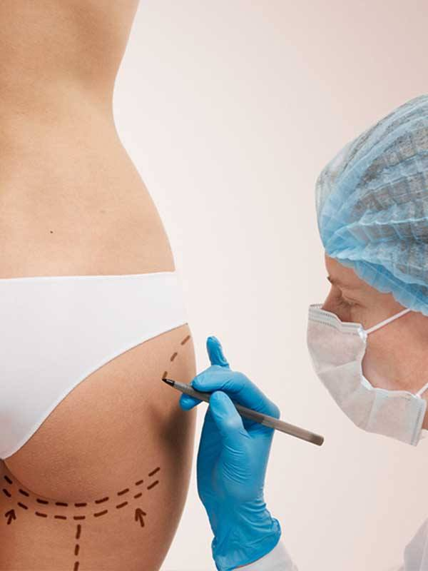 Popo estetiği öncesi işaretleme yapan kadın doktor