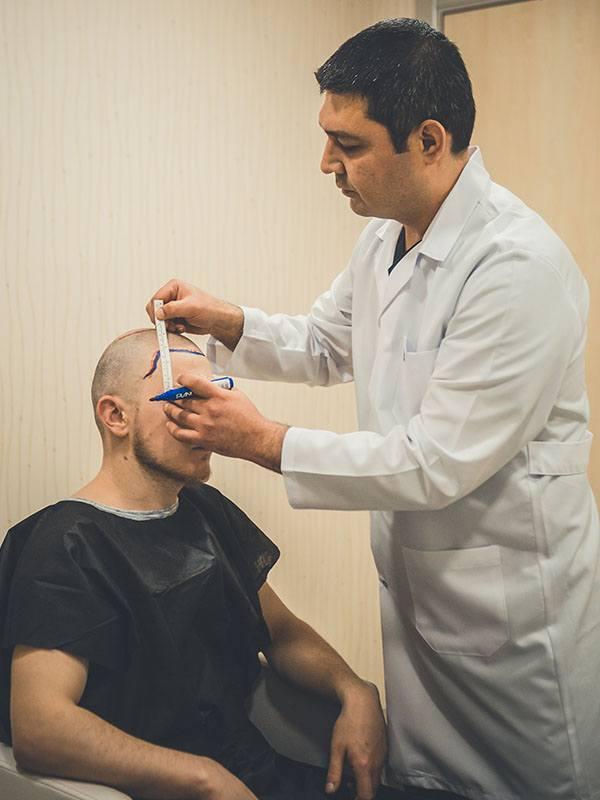 Saç ekim öncesi hazırlık yapan doktor