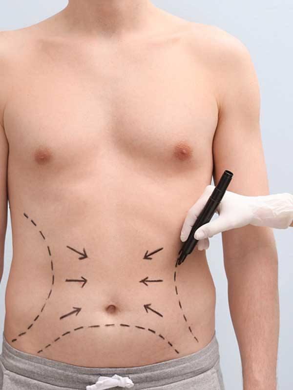 Vaser Liposuction öncesi karın bölgesi işaretlenen erkek