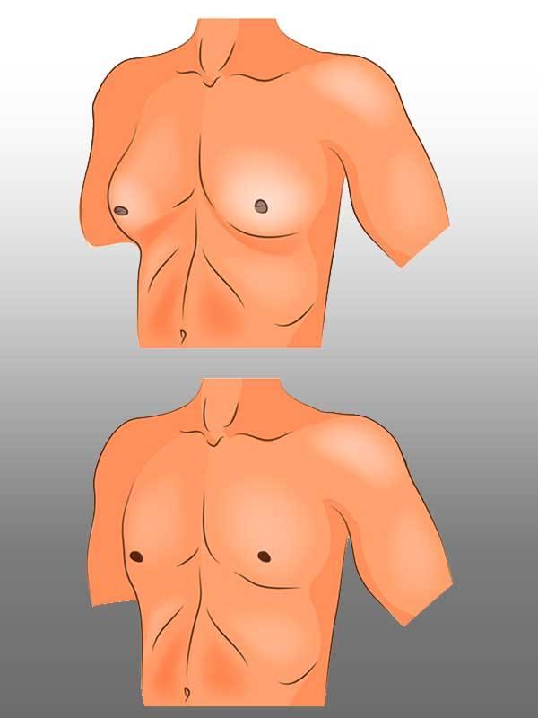 Jinekomasti ameliyatı öncesi ve sonrası görüntüler