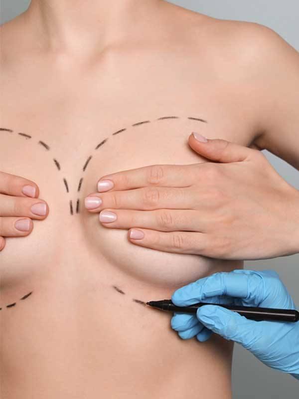 Yağ enjeksiyonu ile meme büyütme öncesi işaretleme