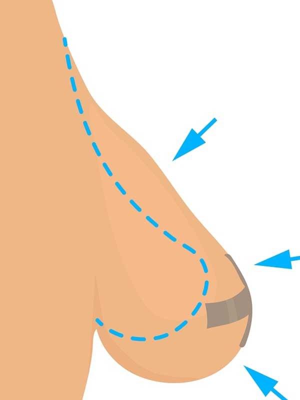 Meme küçültme ameliyatını anlatan çizim
